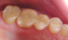 otturazioni di denti con la resina