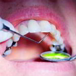 I denti, fonte di intossicazione trascurata
