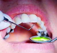 denti devitalizzati