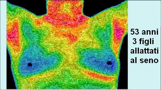 tumore-al-seno-1