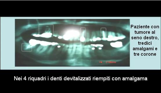 tumore-al-seno-5