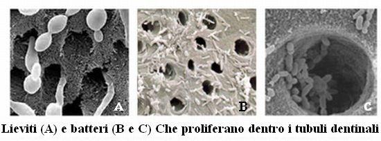 lieviti e batteri nei tubuli dentinali