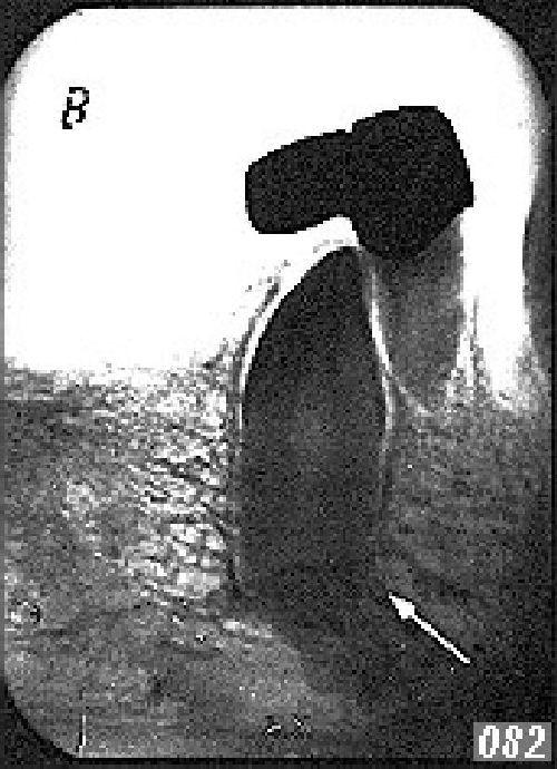 adler-082