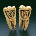I denti come causa di malattia, era noto da secoli