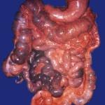 Il colon, sistema fognario o pozzo nero?