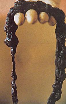 Il colon, sistema fognario o pozzo nero? 1