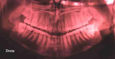 ortopantomografia 3