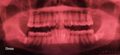 ortopantomografia 4