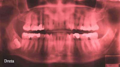 ortopantomografia 5