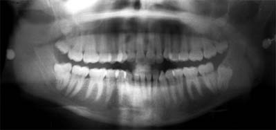 ortopantomografia 7