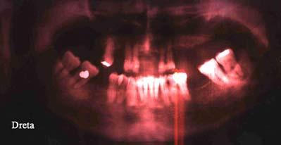 ortopantomografia 8