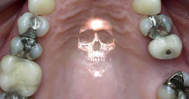 vapor di mercurio in bocca